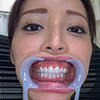 【Tooth fetish】 We observed Akai Sakurai's teeth!