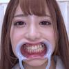 [牙齒戀物癖]我觀察了有村伸美的牙齒!